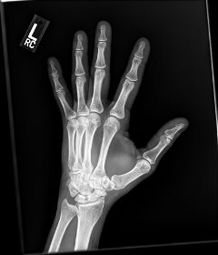skeletal xray hand